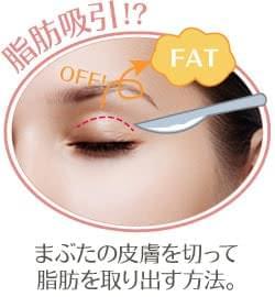 脂肪 取り 瞼 「瞼が重い」を治す3つの方法【脂肪取り・サーミスムース・眼瞼下垂】│美容外科の医師監修コラム