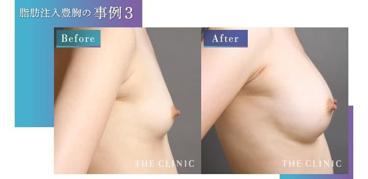 脂肪注入 豊胸手術