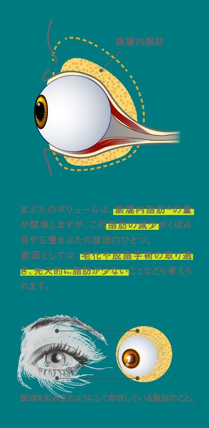 まぶたのボリュームは、眼窩内脂肪※の量が関係しますが、この脂肪の減少がくぼみ目や三重まぶたの原因のひとつ。要因としては、老化や脱脂手術の取り過ぎ、先天的に脂肪が少ないことなども考えられます。