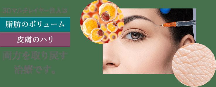 3Dマルチレイヤー注入は「脂肪のボリューム」「皮膚のハリ」両方を取り戻す唯一の方法です。