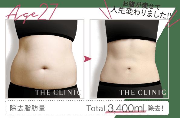 脂肪吸引のお腹モニター募集中】画像や失敗しない理由も公開