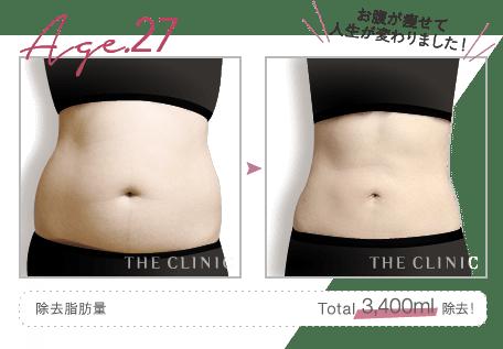 Age.27 お腹が痩せて人生が変わりました!   除去脂肪量: Total 3,400ml 除去!