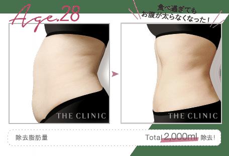 Age.28 食べ過ぎてもお腹が太らなくなった! | 除去脂肪量: Total 2,000ml 除去!
