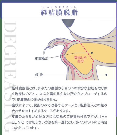 経結膜脱脂 | 経結膜脱脂とは、まぶたの裏側から目の下の余分な脂肪を取り除く治療法のこと。 まぶた裏の見えない所からアプローチするので、皮膚表面に傷が残りません。症状によって、脱脂のみで改善するケースと、脂肪注入との組み合わせをおすすめするケースがあります。皮膚のたるみが心配な方には切除のご提案も可能ですが、THE CLINIC では切らない方法を第一選択とし、多くのゲストにご満足いただいています。