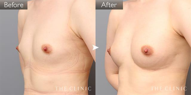 豊胸・胸の整形 ボリュームアップ 症例写真