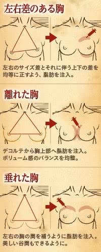 正解のバストに治療するなら脂肪豊胸がベスト