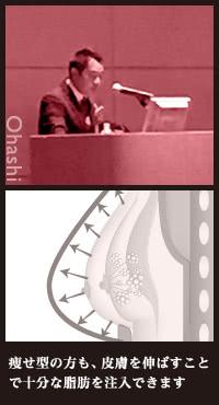 豊胸機器BRAVAを併用した際の脂肪注入の効果<br/>…ドクター大橋昌敬