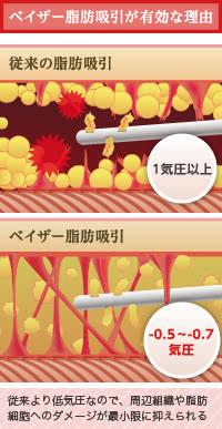 ベイザー脂肪吸引が脂肪採取に有効なワケ