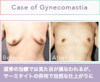 世界をうならせた女性化乳房の治療