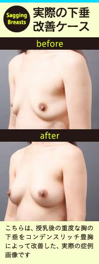 すでに胸の下垂でお悩みなら3つのバストアップ治療で改善を