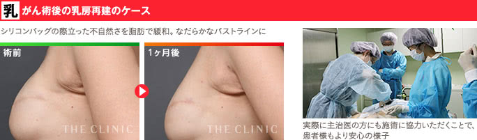乳がん術後の乳房再建と脂肪注入