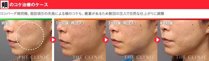 脂肪の保存で治療が気軽になった顔の難病「ロンバーグ病」