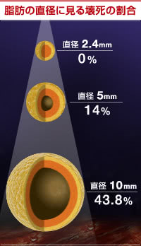 直径10mmの注入でも40%以上の脂肪がロス!?