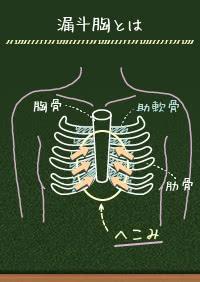 女性の漏斗胸、骨を手術せずに胸の治療ができる?