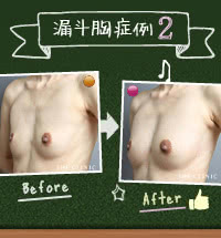 骨を手術せずに漏斗胸を治療した女性:その2