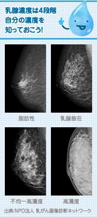 ヒアルロン酸豊胸、乳がん、デンスブレストの関係