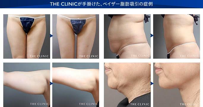 THE CLINIC が手掛けたベイザー脂肪吸引の症例