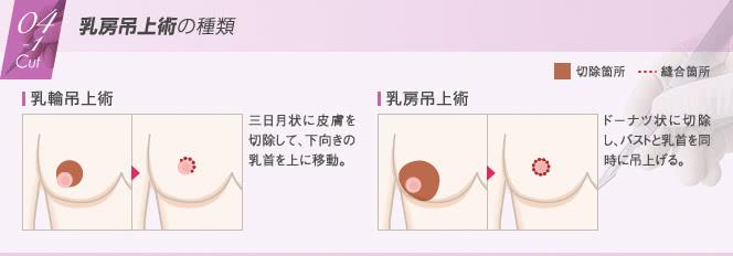 豊胸外来:乳房吊上術の種類