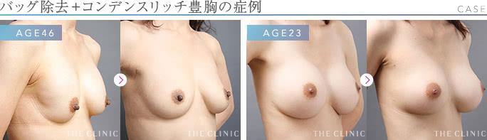 豊胸外来:豊胸バッグ除去と同時のコンデンスリッチ豊胸の症例