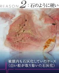 豊胸外来:豊胸シリコンバッグと同時に除去した石灰化
