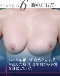 豊胸外来:豊胸シリコンバッグで生じた胸の左右差