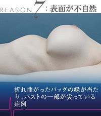 豊胸外来:豊胸シリコンバッグのリップリング症例