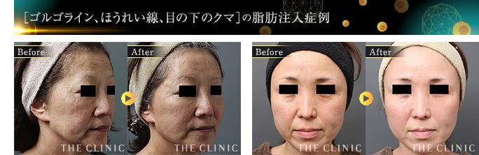 顔、ゴルゴライン、ほうれい線、目の下のクマ顔の脂肪注入症例画像