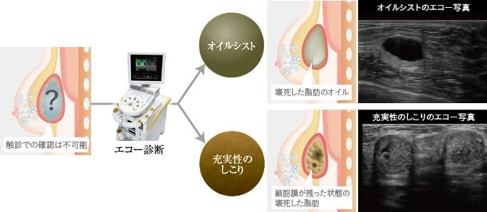 脂肪注入豊胸によるしこりは内容物で治療法が異なる?