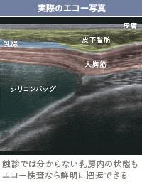 シリコンバッグ(豊胸インプラント・プロテーゼ)の位置が違う!?
