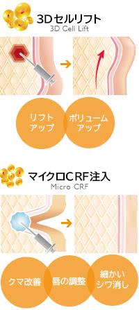 顔の脂肪注入の2大施術! 3DセルリフトとマイクロCRF
