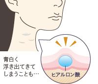 顔への効果が話題のマイクロCRFが救世主に?