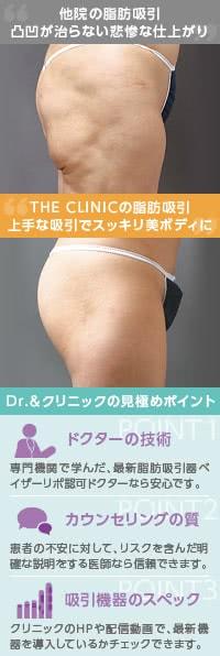 豊胸前の落とし穴! 脂肪吸引の注意点