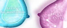 豊胸手術と乳がんの関係が明らかに! 3つのQ&A