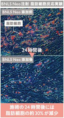 BNLS注射の施術2