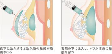 豊胸ヒアルロン酸注入(プチ豊胸)の施術1