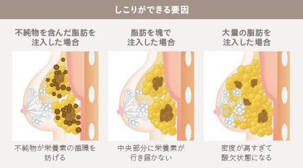 豊胸脂肪注入しこり外来の施術1