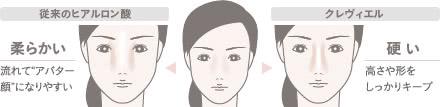 クレヴィエル(鼻・顎のヒアルロン酸注入)の施術1