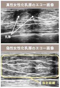 女性化乳房(男性の胸の膨らみ)外来の施術2