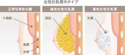 女性化乳房(男性の胸の膨らみ)外来の施術1