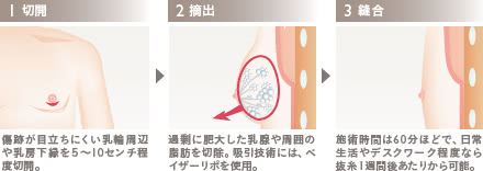 女性化乳房外来の施術2