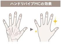 手の若返り(ハンドリバイブMC)の施術2