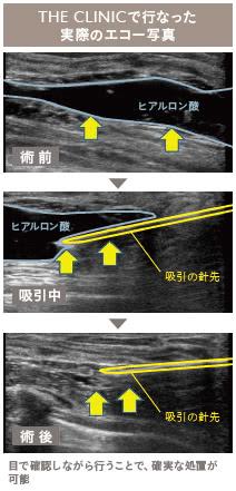 豊胸ヒアルロン酸注入しこり外来の施術3