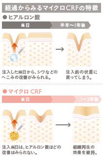 マイクロCRF注入の施術2