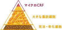 マイクロCRF注入の施術1