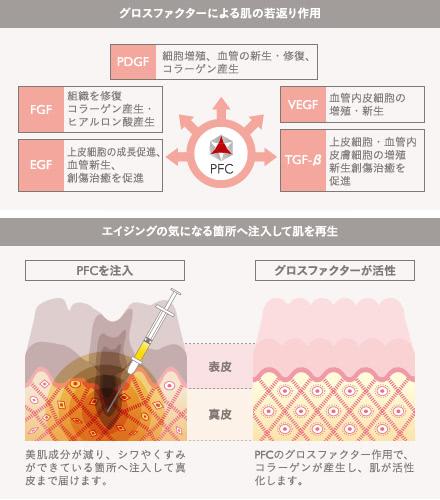 PFC注入の施術2