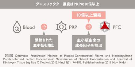 PFC注入の施術3