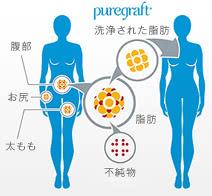 ピュアグラフト豊胸の施術2