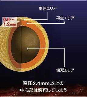 2.4mmの法則の詳細