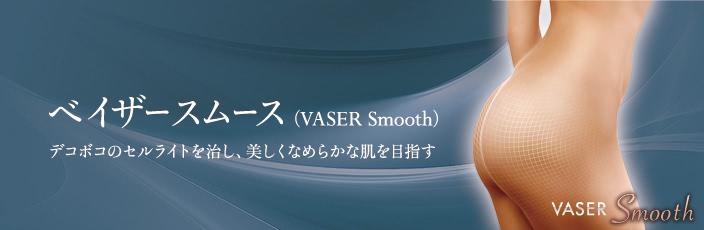 ベイザースムース(VASER Smooth)