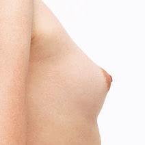 乳頭の調整の施術